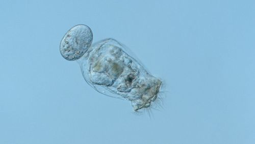 Microscoopic picture of a rotifer.